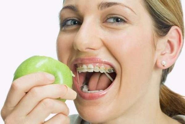niềng răng không có kết quả 4