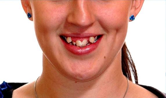 răng khểnh đẹp hay xấu 2