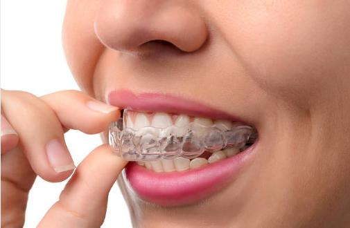 Niềng răng hàm tháo lắp 2