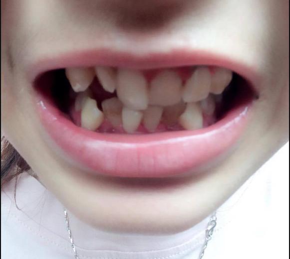 Niềng răng không đều