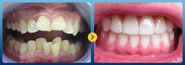 Niềng răng không đều 2