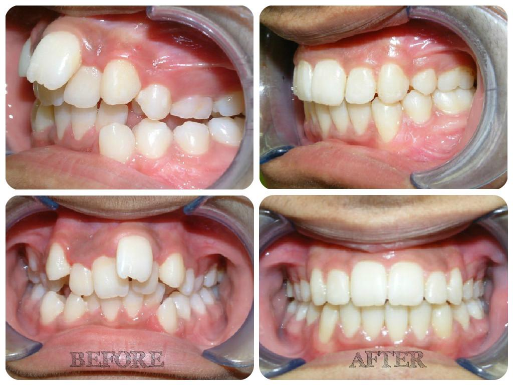 Niềng răng không đều 3