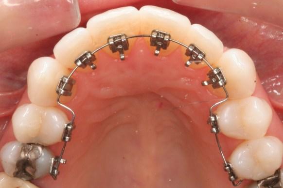 Niềng răng thẩm mỹ 5