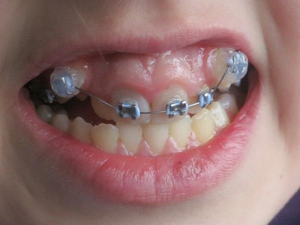 Răng khểnh mọc quá cao 1