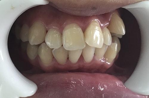 Răng mọc chen chúc