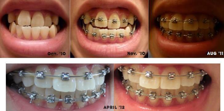 Rút ngắn thời gian niềng răng bằng cách nào