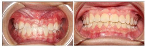 Tư vấn niềng răng miễn phí
