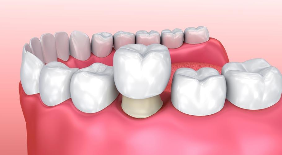 bọc răng sứ có niềng răng được không