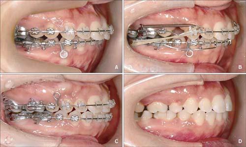 Bọc răng sứ có niềng răng được không?