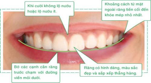 Hàm răng chuẩn đẹp