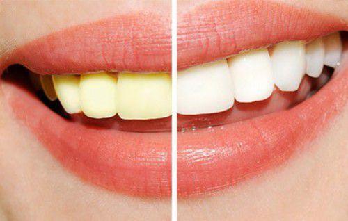 Hàm răng tiêu chuẩn
