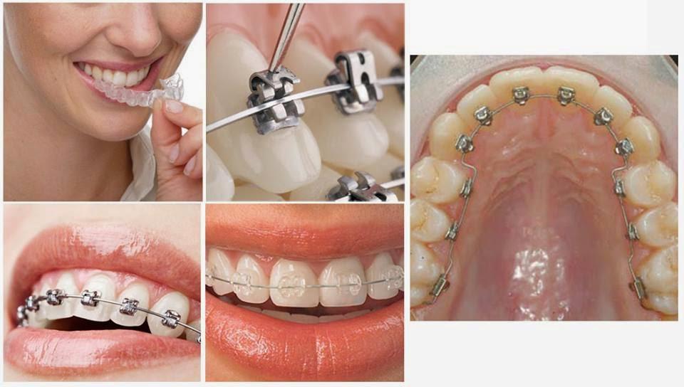 hàm răng chuẩn