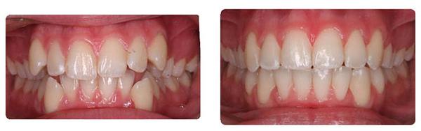 niềng răng 5