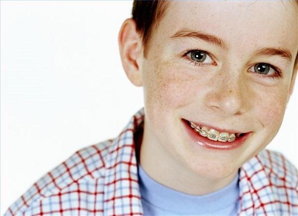 kinh nghiệm niềng răng cho trẻ