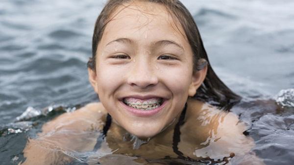 kinh nghiệm niềng răng cho trẻ 3