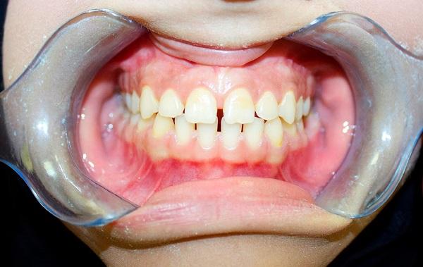 niềng răng 3