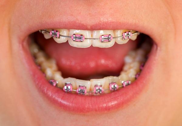 niềng răng bao nhiêu lâu