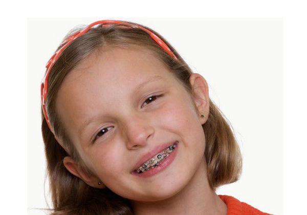 niềng răng bao nhiêu lâu 2