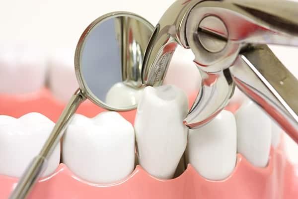 niềng răng bao nhiêu lâu 3