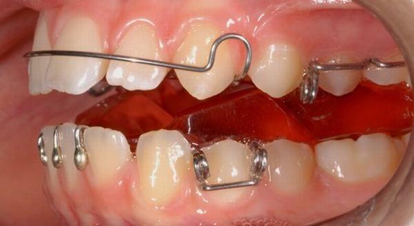 niềng răng bao nhiêu lâu 5