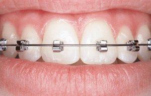 niềng răng cố định 2