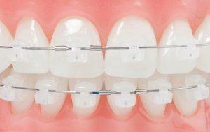 niềng răng cố định 3