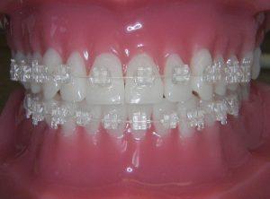 niềng răng cố định 4