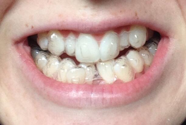 niềng răng không mắc cài eCligner 3