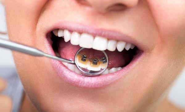 niềng răng và những điều cần biết 3