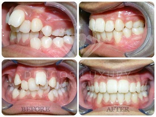 niềng răng 6