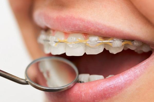 quá trình niềng răng hô
