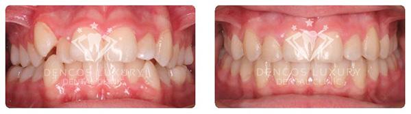 quá trình niềng răng hô 8