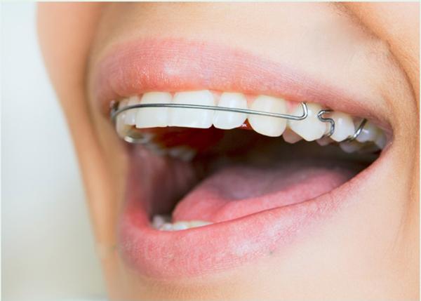 quá trình niềng răng hô 9