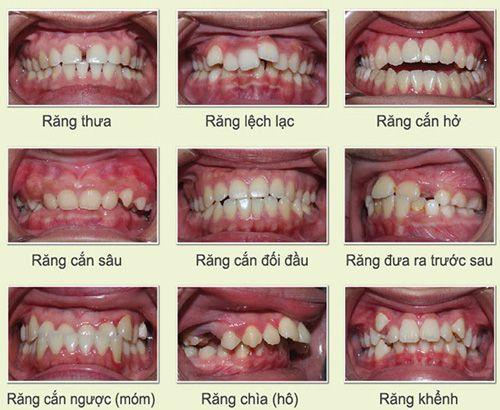 thời gian niềng răng tối thiểu 2