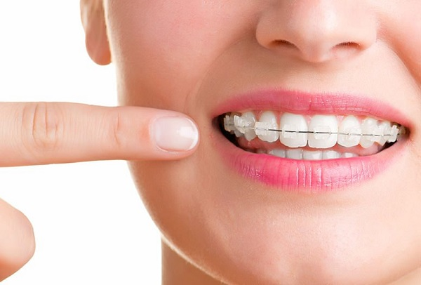 thông tin về dịch vụ niềng răng