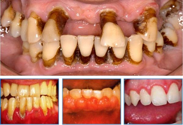 các trường hợp không thể niềng răng 1