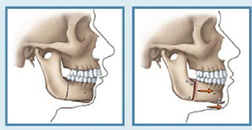 các trường hợp không thể niềng răng 3