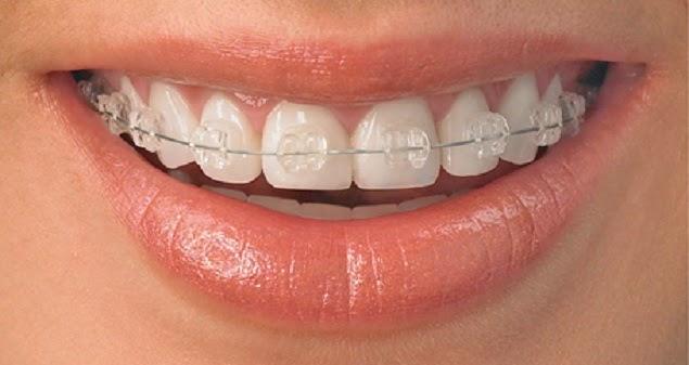 các trường hợp không thể niềng răng
