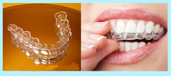 Cách tự niềng răng ở nhà