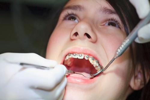 vật dụng không thể thiếu khi niềng răng 1