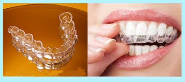 vật dụng không thể thiếu khi niềng răng 2