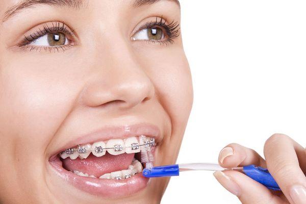 vật dụng không thể thiếu khi niềng răng