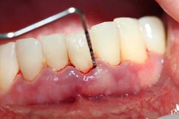 Lấy cao răng có tốt không 2
