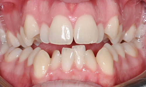 Nhổ răng để niềng 1