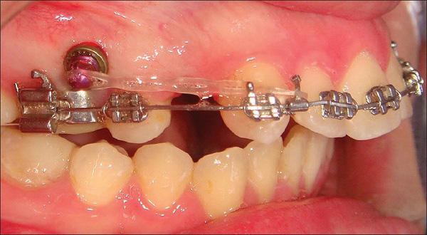 Nhổ răng để niềng 2