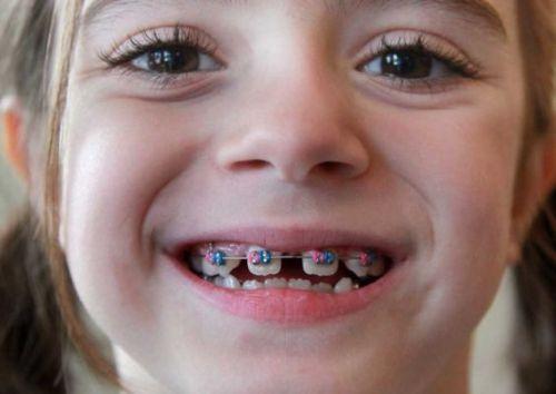 Có nên niềng răng khi chưa mọc đủ răng trưởng thành