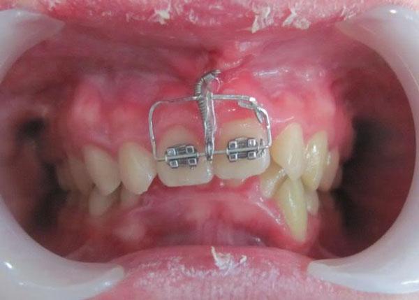 Răng cửa mọc lệch 1