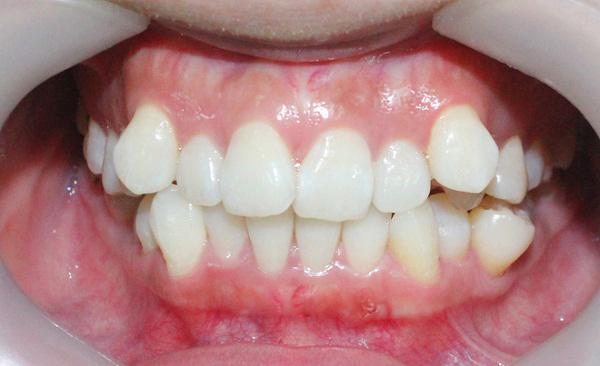 bệnh nghiến răng có lây không 2