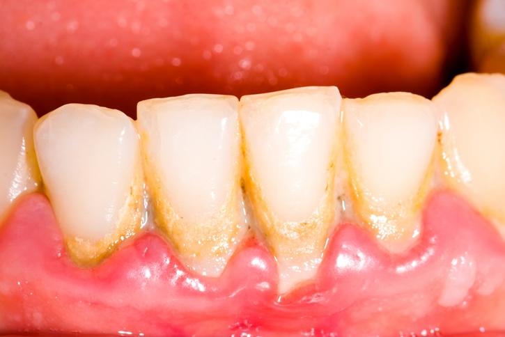 lấy cao răng có ảnh hưởng đến thai nhi 2
