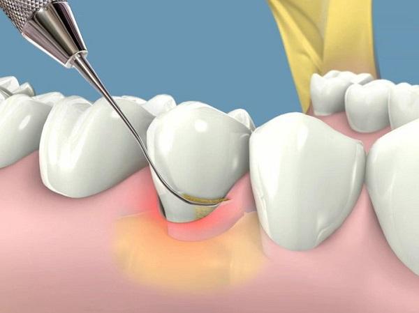 cạo vôi răng thường xuyên có tốt không 3